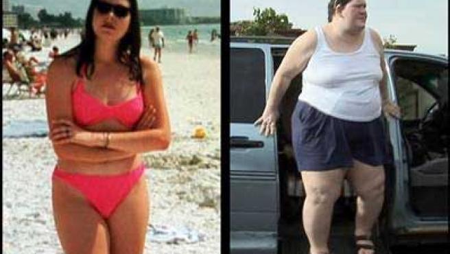 En la foto de la izquierda, Tanya antes de padecer la enfermedad; en la de la derecha, se muestra su aspecto actual.