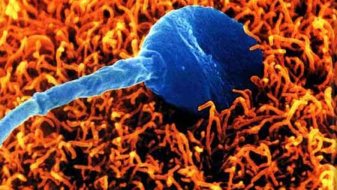 Imagen ampliada de un espermatozoide.