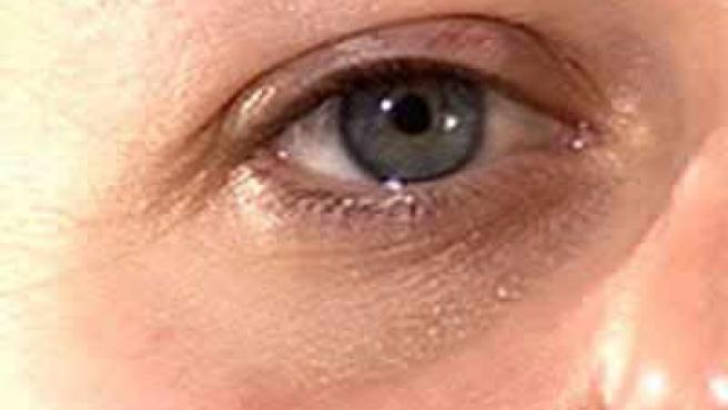 causas del ojo morado