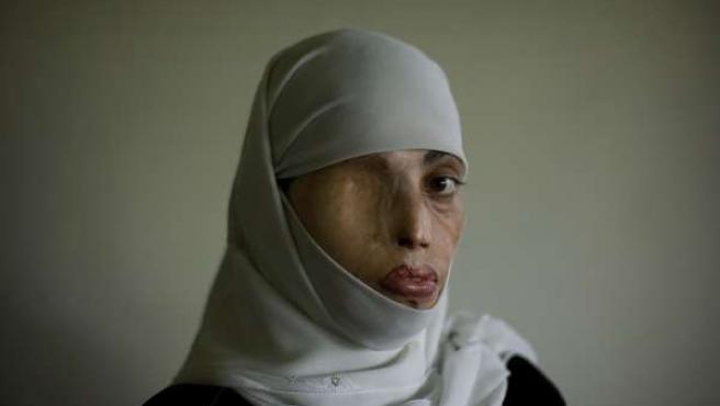 La obra 'Violencia de género, Pakistán' ha ganado la 19ª edición del certamen FotoPres 09.