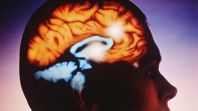Esquema de un cerebro humano.