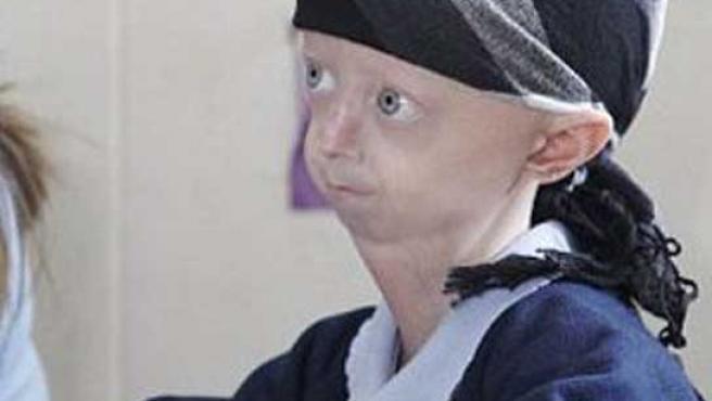 Una niña de doce años que tiene el aspecto de una anciana de 96.