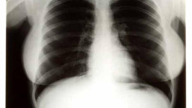 Una de las tres radiografías subastadas de la leyenda de Hollywood Marylin Monroe.