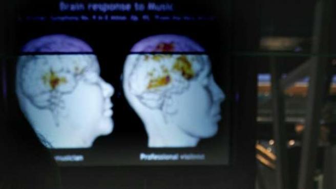 Los experimentos arrojan pistas sobre cómo tratar los efectos del síndrome de estrés postraumático en humanos.