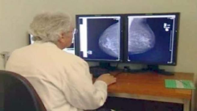 Un médico observa imágenes de la presencia de un cáncer.