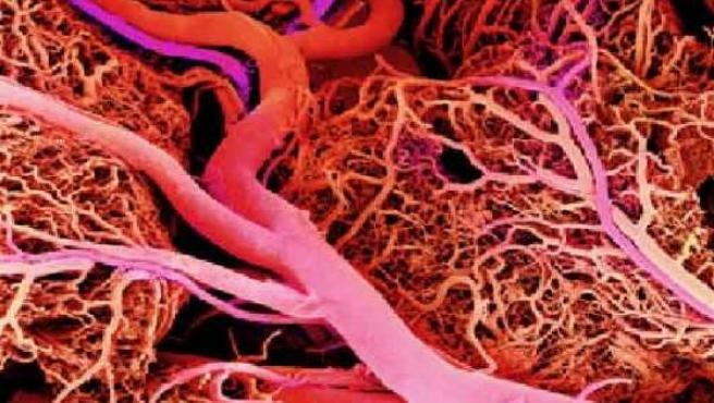 Hasta ahora ningún injerto vascular resistía su almacenamiento.