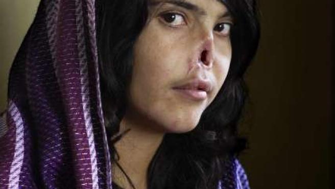 Retrato de Bibi Aisha, una muchacha afgana de 18 años, obra de la sudafricana Jodi Bieber del Institute for Artist Management para la revista 'Time', que ha ganado el 54ª edición del concurso de fotografía World Press Photo 2010.