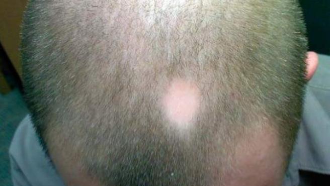 La alopecia androgénica afecta al 50% de los hombres a lo largo de su vida.