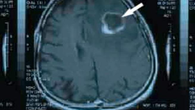 Localización de un tumor en el cerebro.