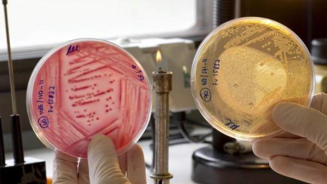 Muestras de 'E. coli'.