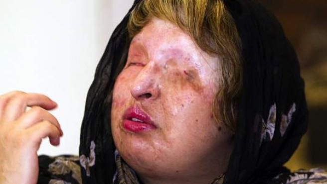 La mujer iraní que quedó desfigurada cuando le rociaron ácido en la cara.
