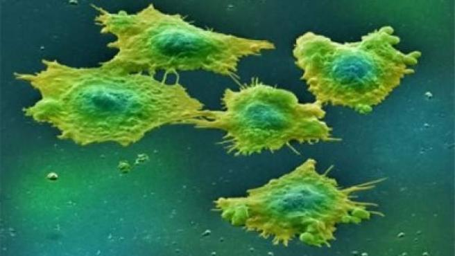Células afectadas por cáncer de colon.