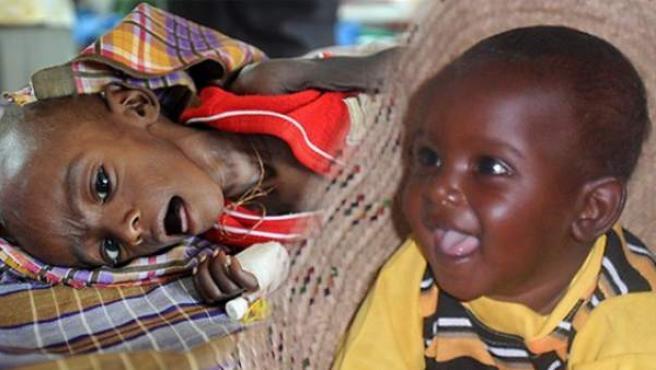 El antes y el después de Minhaj, el niño que llegó a un campo de refugiados a punto de morir, y que gracias a los cuidados que recibió logró sobrevivir al hambre.