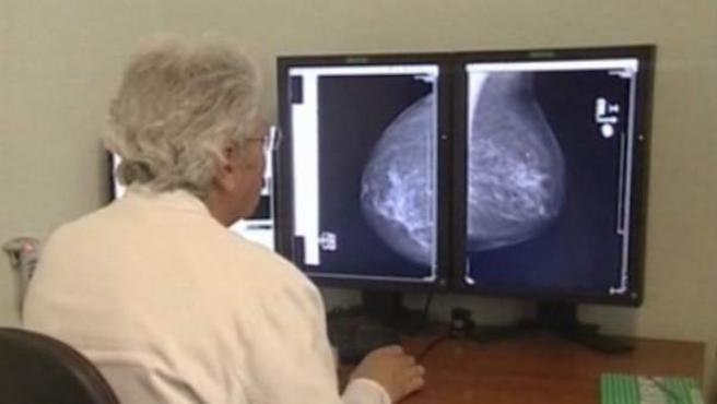 Un médico analiza una imagen de una mama para detectar la presencia de cáncer.