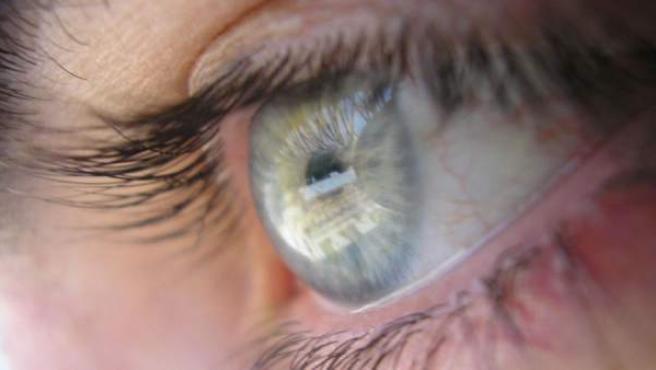 infección del ojo canario