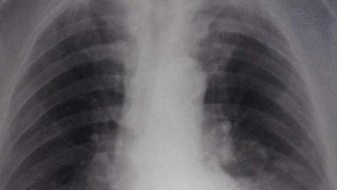 Una radiografía revela el mal en los pulmones.