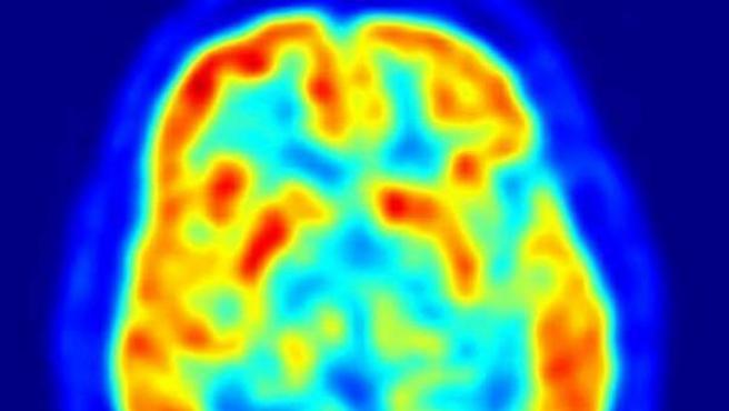 La imagen de 'scanner' muestra la actividad cerebral.
