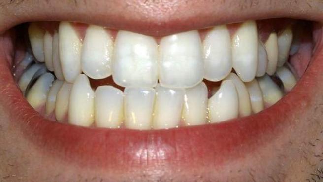 La dentadura de un hombre.