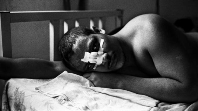 Inmigrante de Centro América que fue atacado y agredido durante la travesía de México