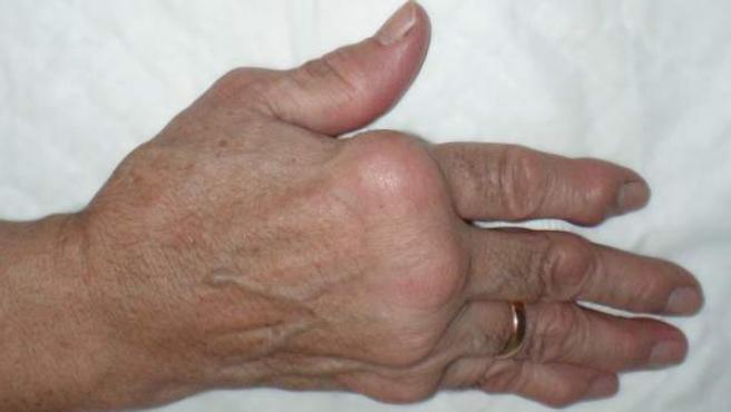 Resultado de la inflamación de los tendones en la mano.