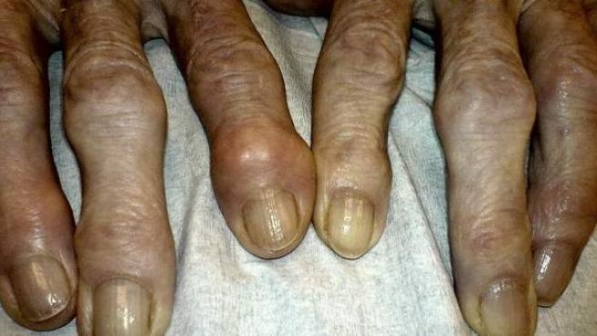 como parar solfa syllable artrosis