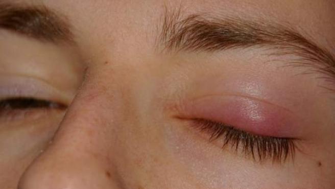 Principio de orzuelo interno en un ojo.