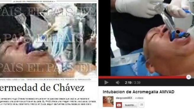 Combo de imágenes que compara la fotografía publicada del supuesto Hugo Chávez entubado publicada por El País y la captura del vídeo de Youtube, subido en 2008, de un paciente durante una intervención médica.