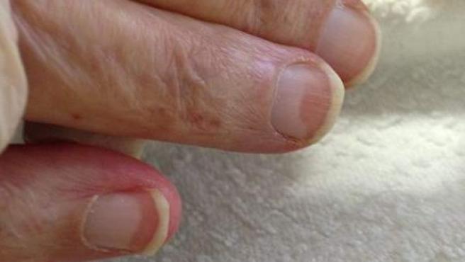 Las manchas en las uñas pueden ser señal de que padecemos una enfermedad cutánea.