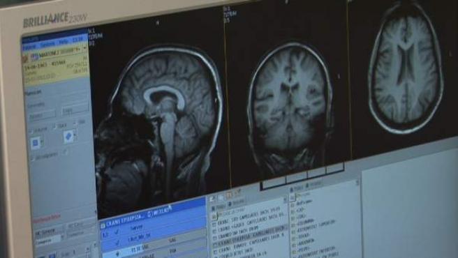 Una resonancia ayuda a ver los niveles de la proteína amiolide en el cebrebro.