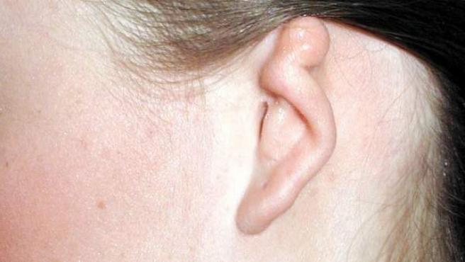 La microtia es una deformidad congénita del oído externo.