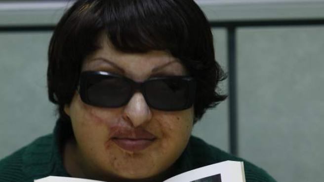 La iraní Ameneh Bahramí, con el libro que ha publicado con su testimonio, Ojo por ojo.