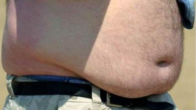 Un hombre que sufre de problemas de obesidad.