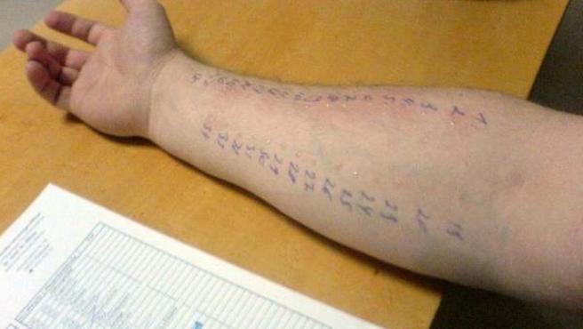 Un paciente se somete a un test de alergias.