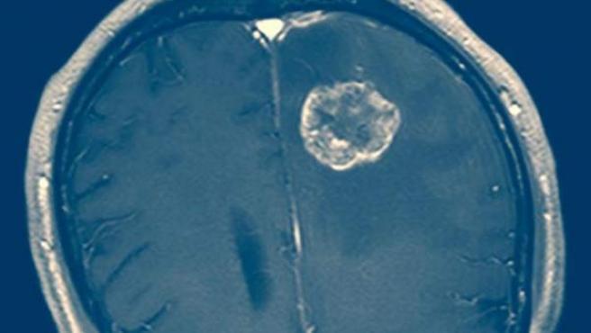 La presencia del tumor, según una imagen del TAC.