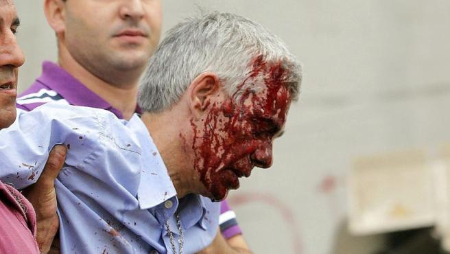 El maquinista del tren Alvia accidentado en Santiago de Compostela sale herido del tren, poco desués de que el convoy descarrilara.
