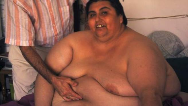 Fotografía facilitada por el doctor Carlos Ballesta de él mismo durante un tratamiento en el año 2006 con Manuel Uribe, el hombre más gordo del mundo según el Récord Guinness.