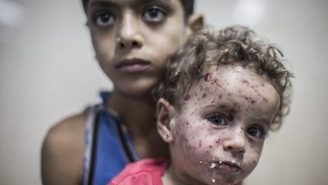 Un niño palestino de 9 años sostiene en brazos a su hermana de un año y medio en la sala de urgencias del hospital de Shifa en la ciudad de Gaza, el viernes 18 de julio de 2014. La niña resultó herida por la metralla después de que un tanque israelí disparara contra su casa en el barrio de Shuja'iyya, en el este de la ciudad de Gaza..