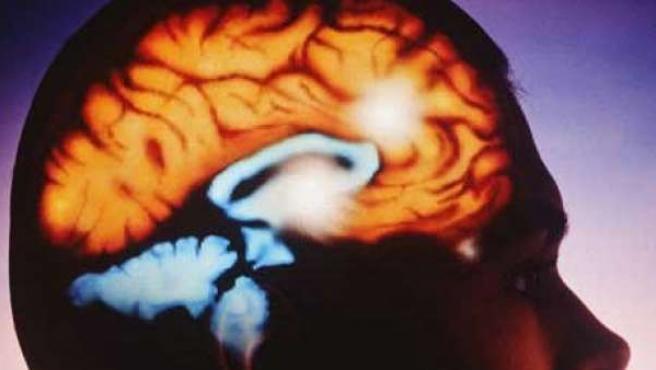 Representación del cerebro humano.