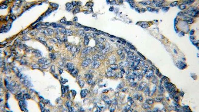 Aparición del tumor en el ovario.