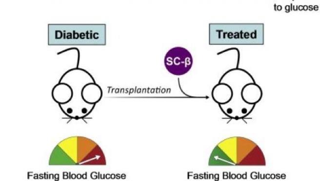 trasplante de celulas madre para la diabetes