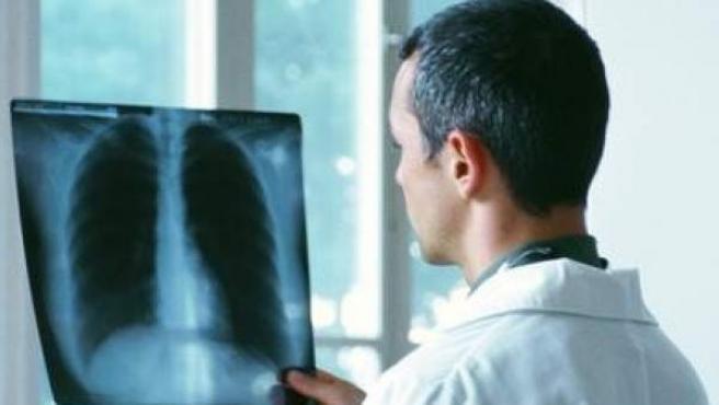 Un médico examina una radiografía, en una imagen de archivo.