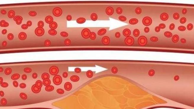 El colesterol está detrás de muchas enfermedades cardiovasculares.
