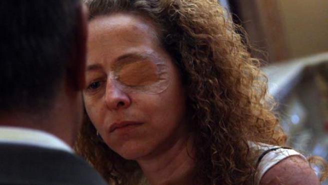 Ester Quintana, quien perdió un ojo izquierdo durante la huelga general del 14-N, ha comparecido en nombre de Ojo con tu ojo.