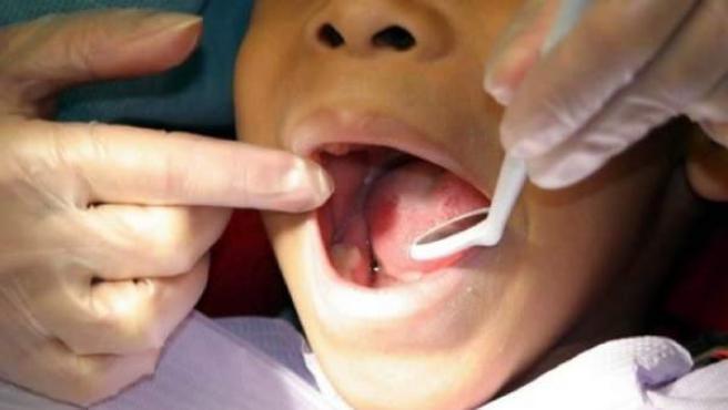 Un odontólogo revisa el estado de las encías y las piezas dentales.