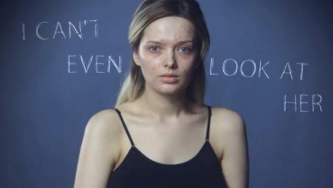 Captura del vídeo viral de Em Ford, la bloguera de moda que ha denunciado los ataques que sufre por tener acné.
