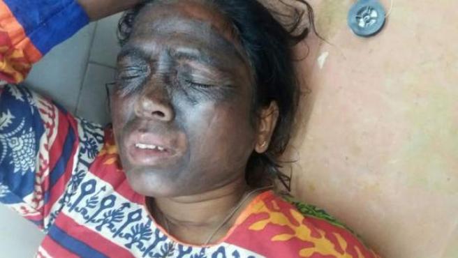 Soni Sori en el Hospital Maharani en Jagdalpur después del ataque.