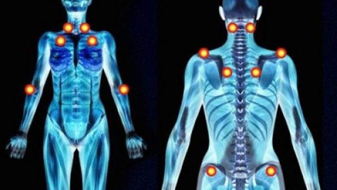 La fibromialgia consiste en una serie de dolores que afectan las articulaciones, los músculos y otras partes del cuerpo.