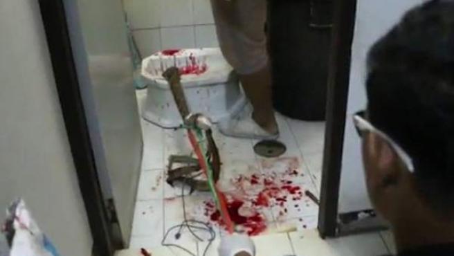 Escenario del suceso en el que una serpiente mordió el pene de un hombre en el váter.