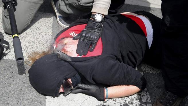 Uno de los manifestantes que se oponen a la reforma laboral del Gobierno francés, herido durante los disturbios con la policía en París.
