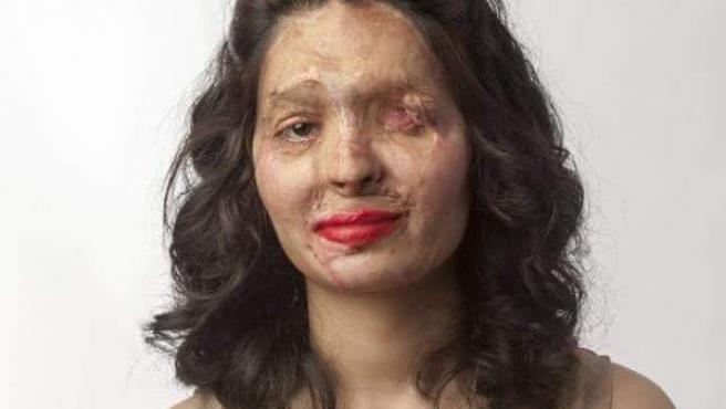 La joven india Reshma Banoo Qureshi es la portavoz de la asociación 'Make Love Not Scars'